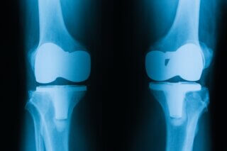Knee Replacement Surgery In Jalandhar​ , knee replacement surgery in Jalandhar